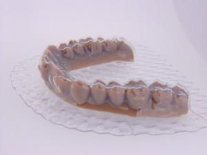 Denti_3
